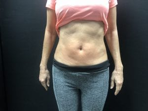 customer stomach after treatment