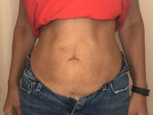 customer stomach before treatment