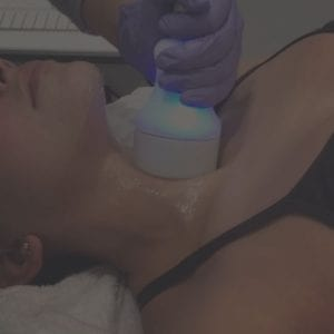 cryoskin treatment for neck